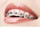 Orthodontic Wire & Coils
