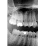 X-Ray (Dental)